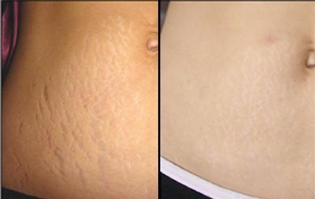 Kem trị rạn da cho bà bầu Biolane 200ml