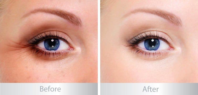 Kem trị thâm quầng mắt Emco giúp các chị em làm mờ các vết thâm quầng, trả lại nét đẹp thanh xuân cho làn da dưới mắt
