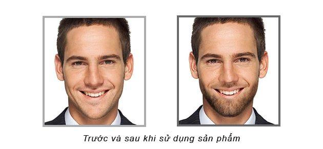 Hiệu quả trước và sau khi sử dụng sản phẩm