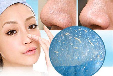 Viên lột mụn Collagen an toàn và hiệu quả  3
