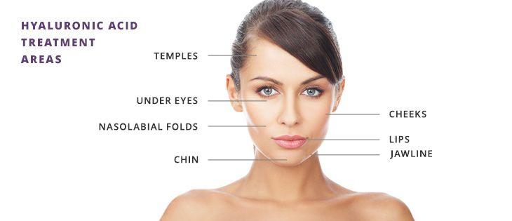 Kem dưỡng Hada Labo chứa thành phần dưỡng ẩm Hyaluronic acid vô cùng quan trọng cho làn da