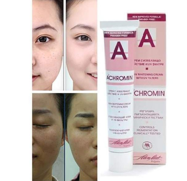 Kem trị nám Achromin có tác dụng loại bỏ nhanh chóng và hiệu quả các đốm tàn nhang, đồi mồi
