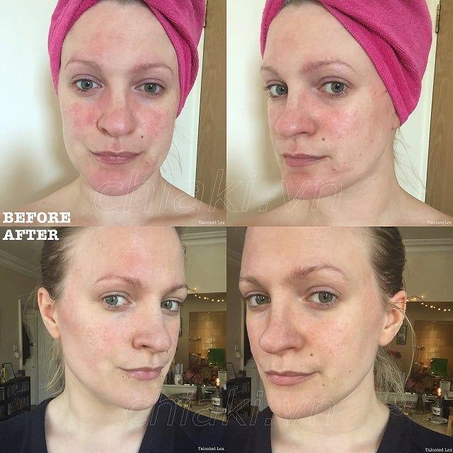 Kem dưỡng da Avene Tolerance Extreme Cream là sản phẩm tuyệt vời cho làn da đang dị ứng hoặc quá nhạy cảm