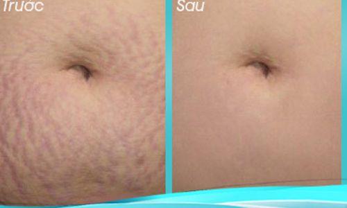 Gly Derm có khả năng làm mờ các vết rạn da sau sinh hiệu quả