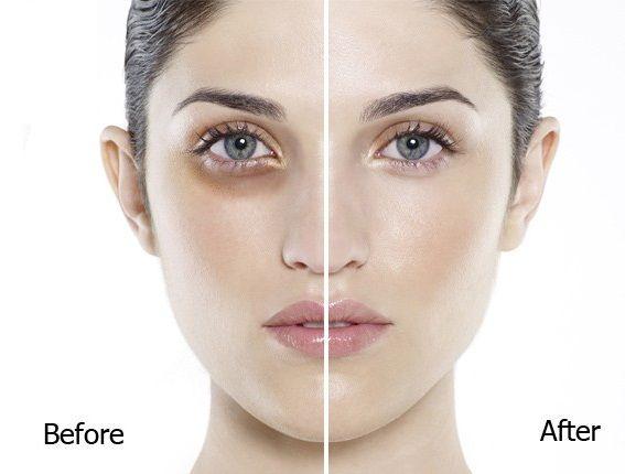 Kem dưỡng mắt Secret Key chăm sóc vùng da xung quanh mắt, giữ và dưỡng ẩm, xóa nhăn và làm trắng hiệu quả