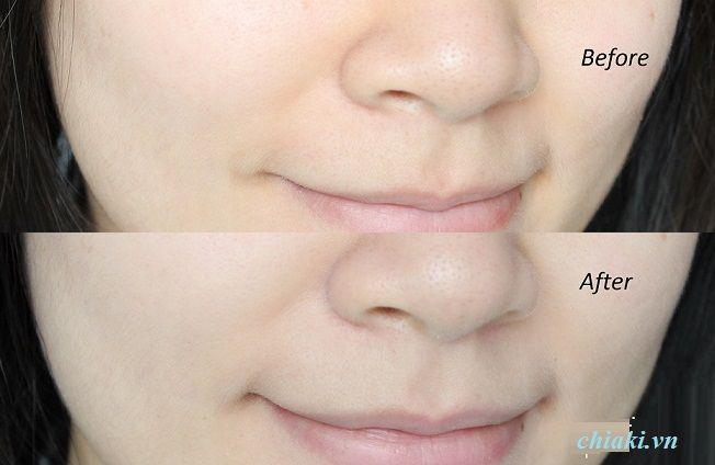 Sản phẩm dành cho da mặt và toàn thân, không gây dị ứng da, dùng được cả cho da nhạy cảm