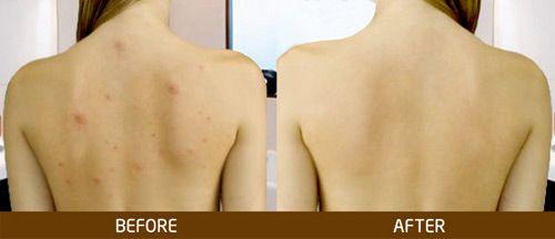Sữa tắm Stanhome Family Soft Shower là sản phẩm sữa tắm không xà phòng dành cho da thường, da dầu mụn lưng, mụn ngực