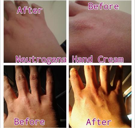 Kem dưỡng Neutrogena Hand Cream trị khô tay, á sừng 2