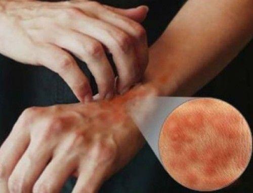 Viêm da do rất nhiều yếu tố liên quan, bệnh có thể có nguyên nhân nào đó hoặc không rõ nguyên nhân