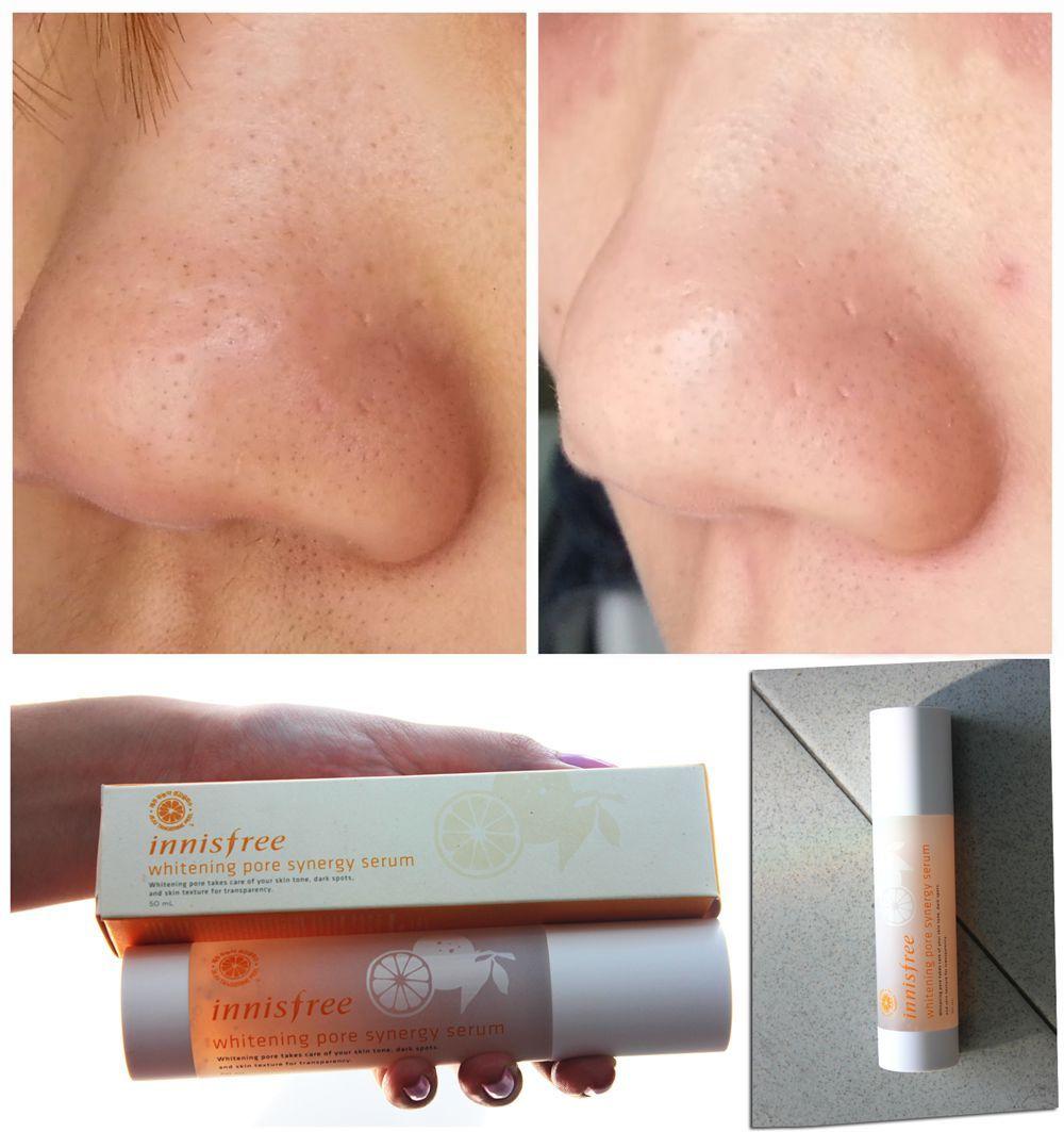 Serum trắng da Innisfree Whitening Pore Synergy Serum dưỡng trắng nhanh và se khít lỗ chân lông hiệu quả