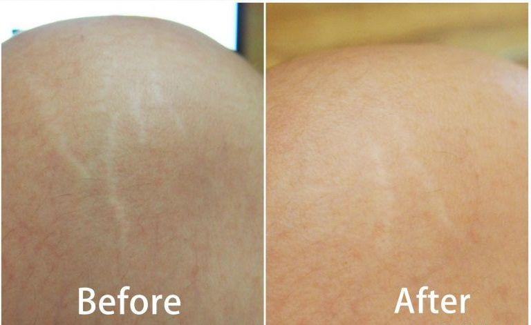 Kem trị rạn da của Nga Pure Line 200ml