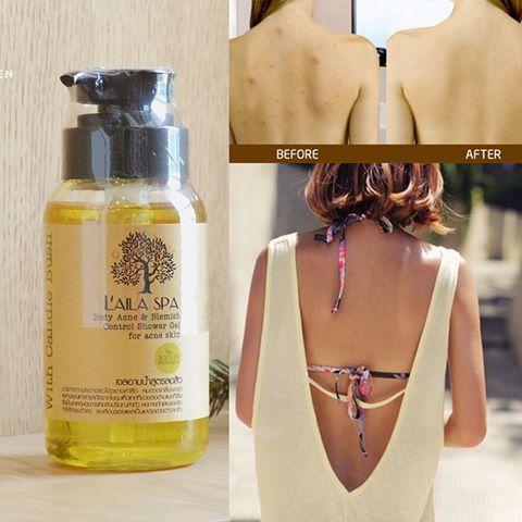 Với sữa tắm Laila Spa, các nốt mụn trên cơ thể bạn sẽ được loại bỏ, nhất là vùng lưng