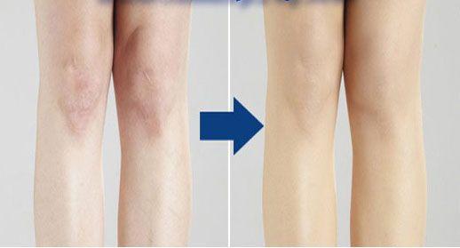 Tất phun Nhật Bản giúp che mờ tới 80% - 90% các khuyết đểm trên đôi chân bạn