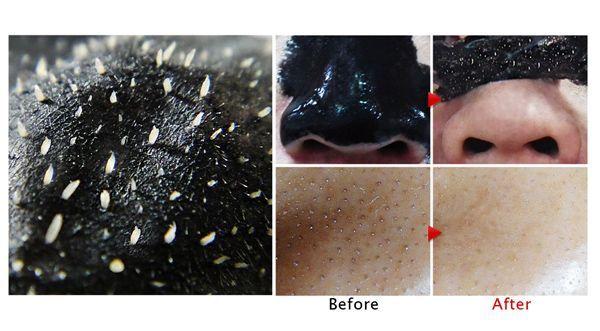 Thành phần than hoạt tính trong mặt nạ giúp dánh bay mụn cám, mụn đầu đen