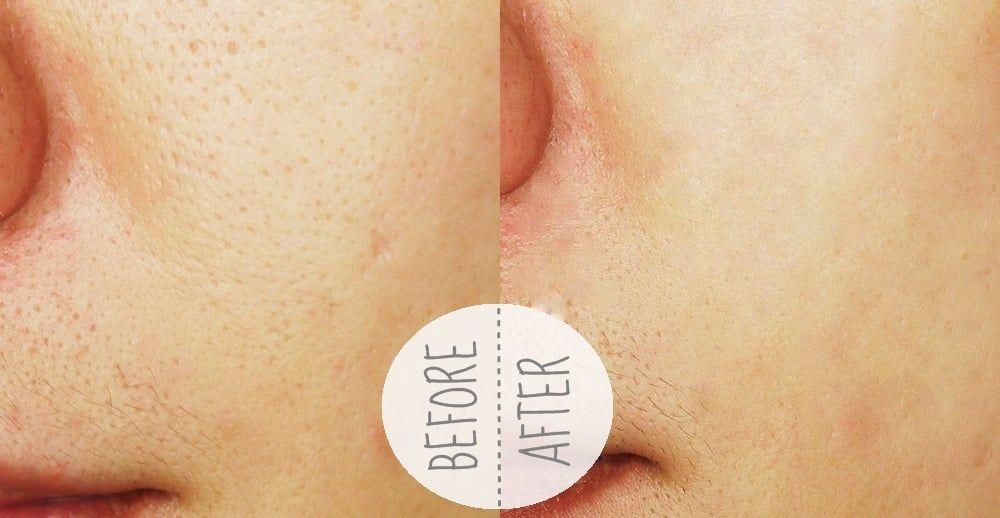 nước hoa hồng La Roche Posay Effaclar lotion astringente Micro Exfoliante giúp thu nhỏ lỗ chân lông