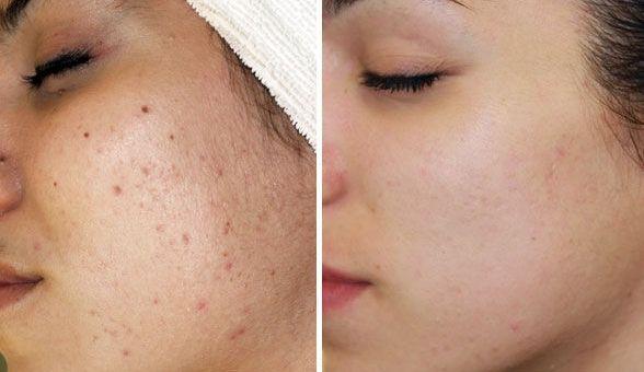 Hanajirushi acne gel nhanh chóng loại bỏ mụn