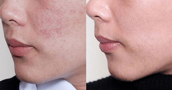 Murad Essential-C Cleanser không chỉ làm sạch da mà còn nuôi dưỡng giúp da khỏe mạnh