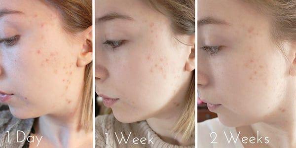 Hiệu quả sau khi dùng Serum trị mụn nặng Lalisse Anti Spot Skin Serum No.2 5ml