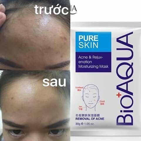 Trước và sau khi sử dụng mặt nạ trị mụn kiềm dầu Bioaqua Pure skin Acne