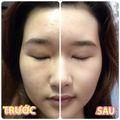 Kem Trị Nám, Tàn Nhang Eucerin Spot Corrector
