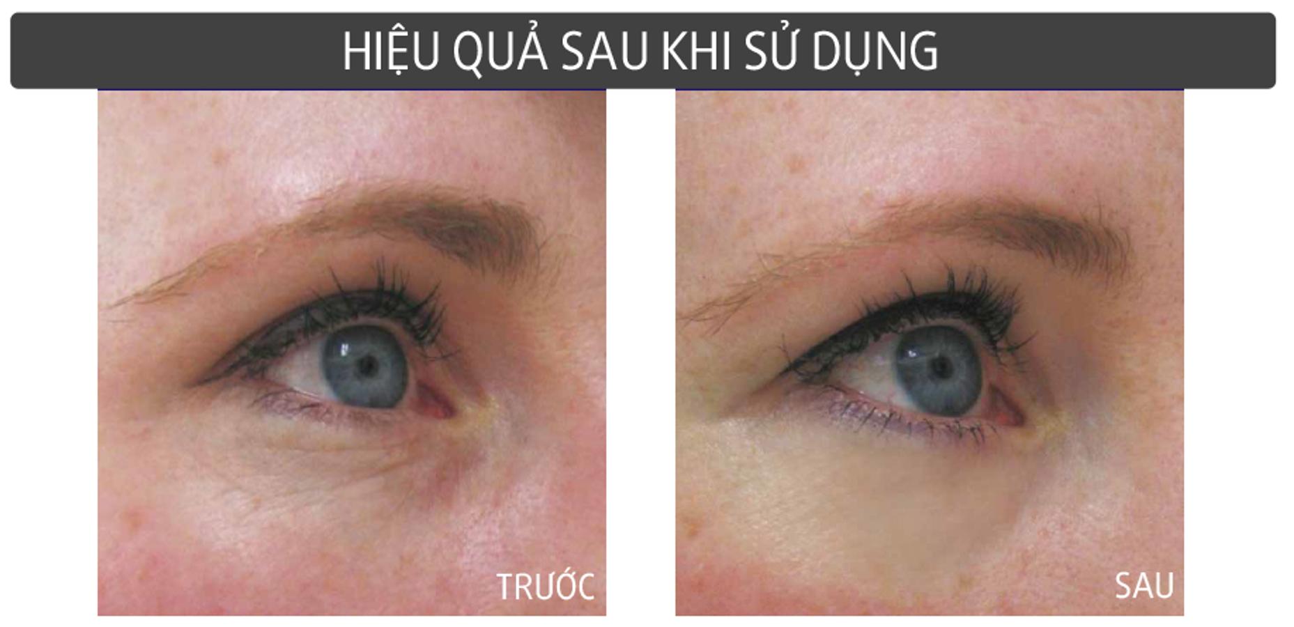 Kem Dưỡng Mắt Shiseido Ultimune Eye Power 15 Ml