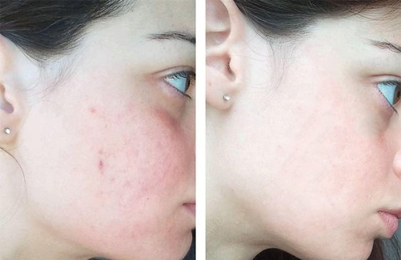Lotion Meishoku Bigansui Medicated Skin Cho Da Mụn