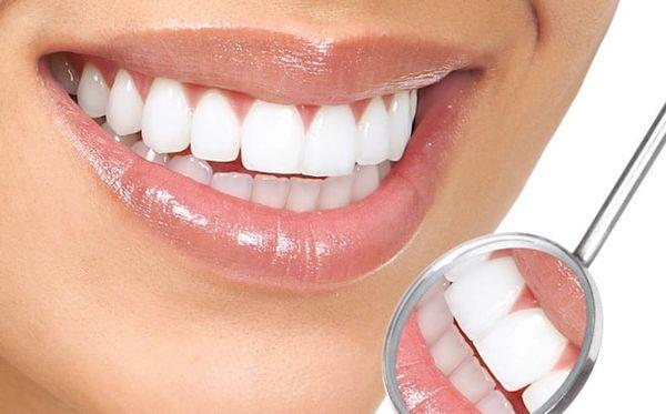 Set 5 đầu bàn chải điện Precision Clean Oral-B 2